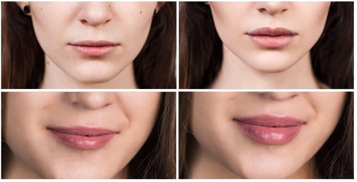 Voor en na Lip fillers