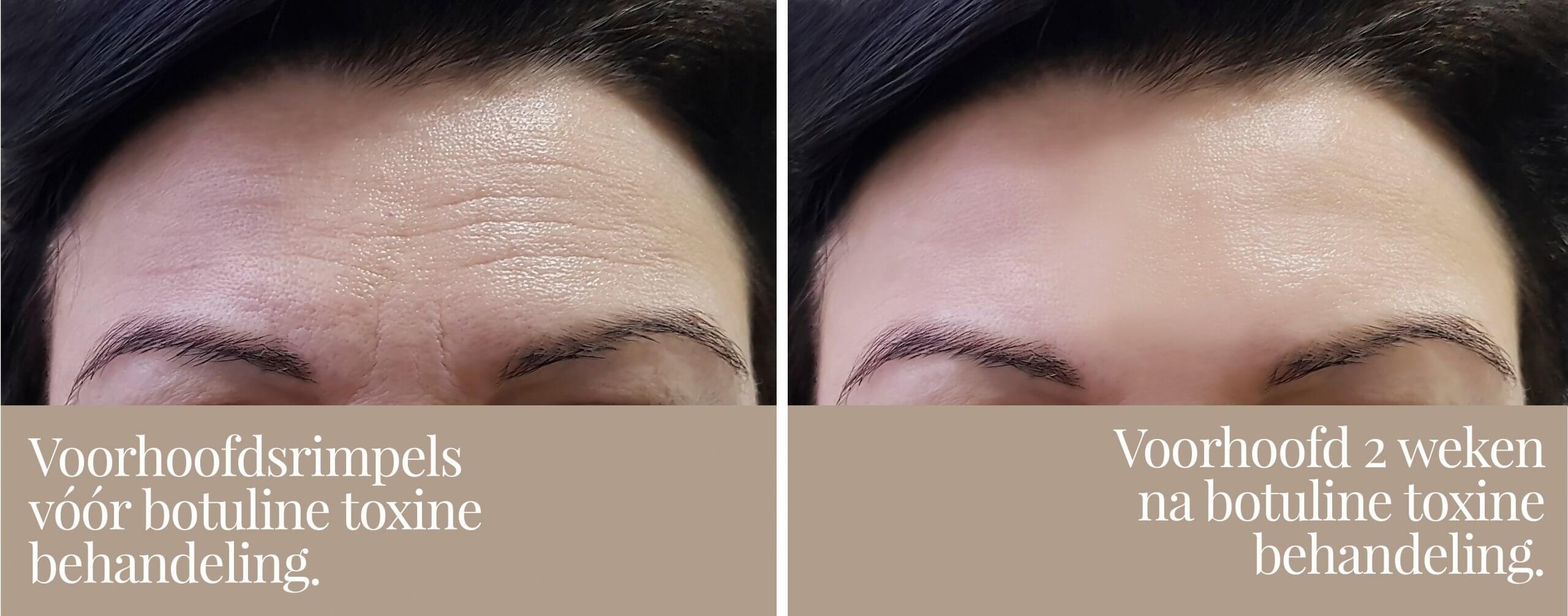 Voor en na botox