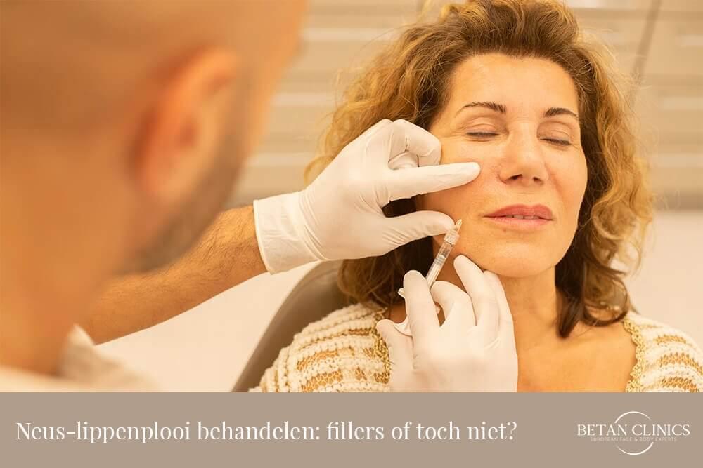 Neus-lippenplooi behandele fillers of toch niet