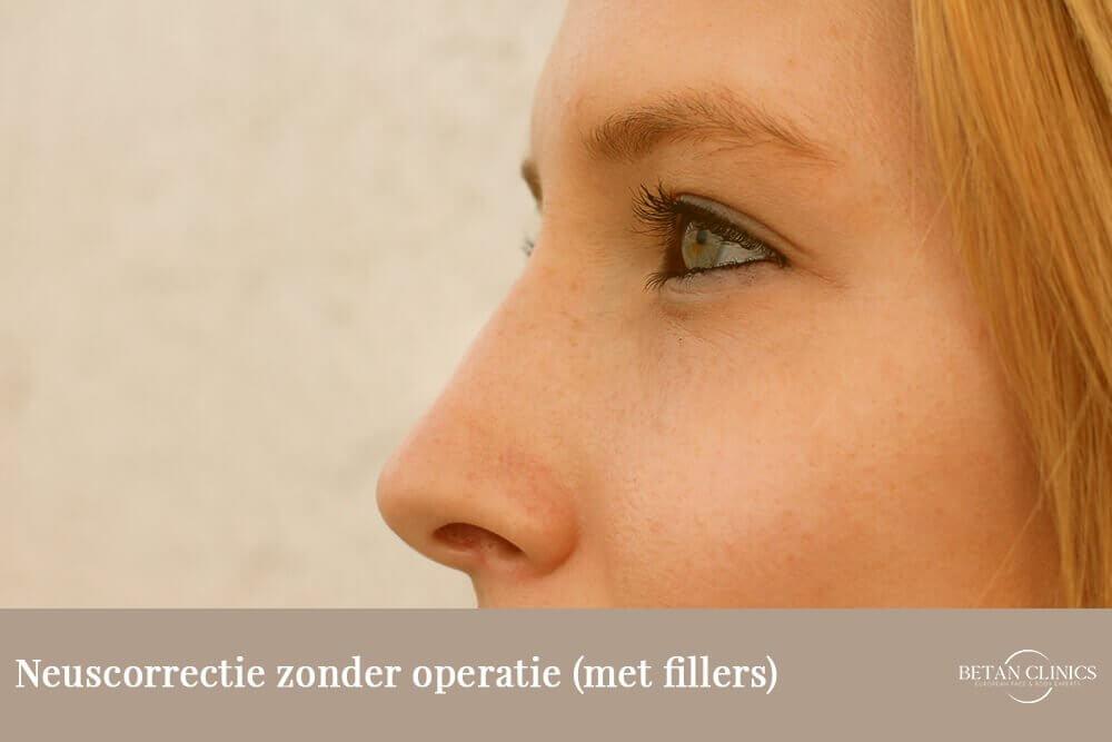 Neuscorrectie zonder operatie (met fillers)