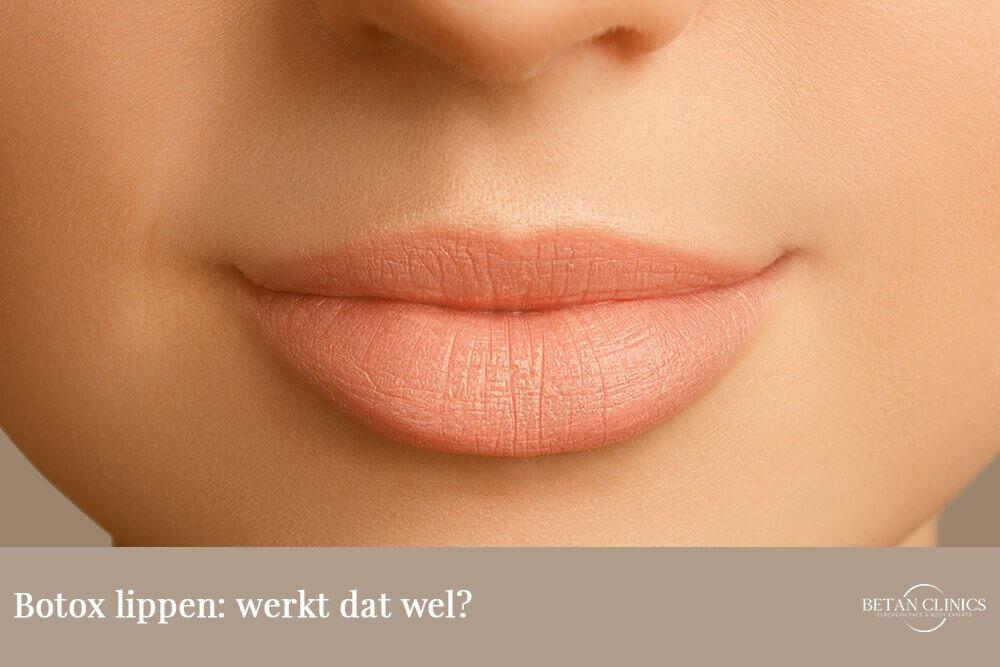 Botox lippen werkt dat wel
